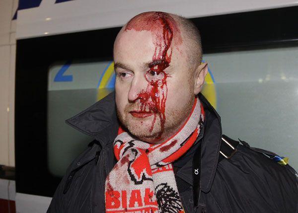 Protesty w Kijowie. Milicja zaatakowała demonstrantów, wśród pobitych są Polacy