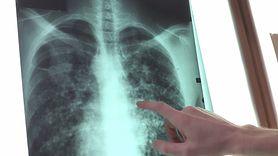 Rak płuc zabija najwięcej Polaków (WIDEO)