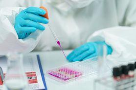 """Koronawirus. Prof. Simon o nowej mutacji SARS-CoV-2 """"Może sprzyjać łatwiejszemu szerzeniu się wirusa"""" (WIDEO)"""