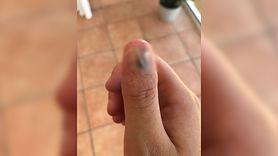 Obgryzanie paznokci może mieć poważne konsekwencje. Studentka straciła palec