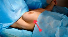 """Wrzuciła na Facebooka zdjęcie przed mastektomią. W ten sposób apeluje do innych kobiet  - """"Badajcie swoje piersi!"""""""