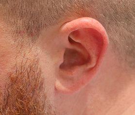 Pieczenie ucha - przesądy, przyczyny, zapobieganie