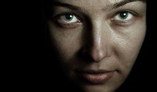 Kobieta doznaje poparzeń skóry nawet od światła żarówki