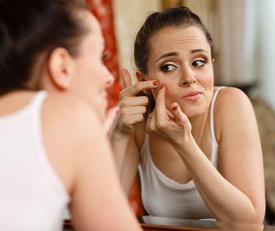 Gdy na twarzy pojawi się pryszcz, nie należy go wyciskać!