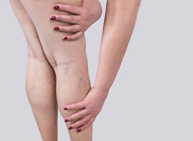 Pękające naczynka na nogach mogą doprowadzić do poważnych problemów ze zdrowiem.
