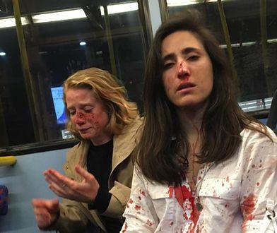 Młode kobiety trafiły do szpitala z ranami na twarzy
