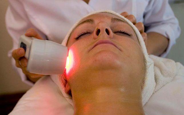 Laserowe zamykanie naczynek na twarzy redukuje ich widoczność