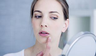 Pielęgnacja skóry z trądzikiem różowatym