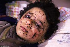 Rosjanie ogłosili humanitarne zawieszenie broni w Damaszku. To jedynie krótka przerwa w masakrze