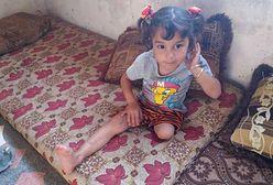 Potrzebna pilna pomoc dla trzyletniej Maysy z Syrii. Dziecko straciło nogę