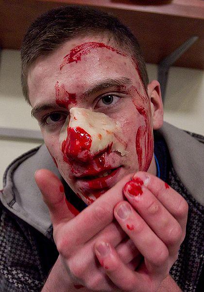 Zamieszki i dużo krwi. Gorąco we Wrocławiu? - zdjęcia