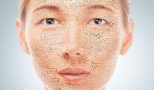 Suche skórki na nosie są objawem przesuszenia skóry