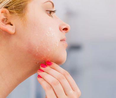 Podrażniona skóra twarzy wymaga szczególnej pielęgnacji