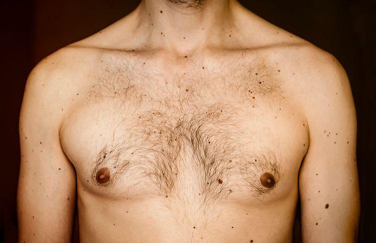 Męskie nowotwory. Nietypowe objawy, na które każdy mężczyzna powinien zwrócić uwagę