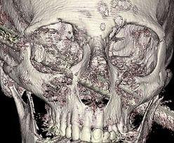 Cud medyczny. Pręt przebił czaszkę na wylot. Pacjent przeżył i pokazał zdjęcie