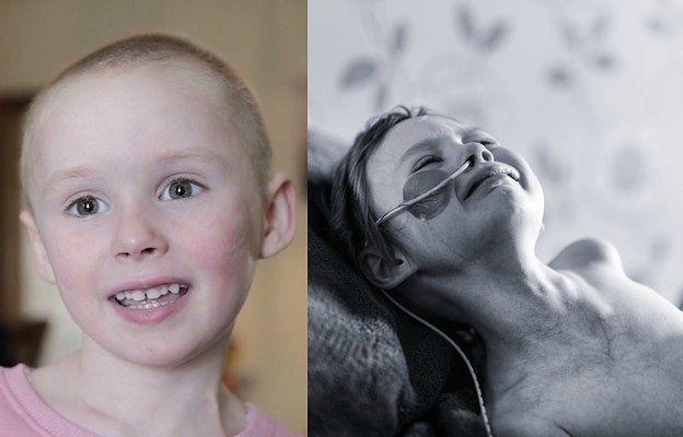 """""""Żadne dziecko nie powinno tak cierpieć"""". Wstrząsające zdjęcie pokazuje piekło nowotworu 4-latki"""