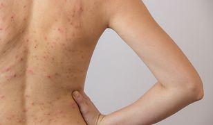 Trądzik na plecach to uciążliwa odmiana, którą leczy się podobnymi metodami, co najpopularniejszy trądzik pospolity.