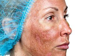 Poparzenia kwasem kosmetycznym to jedne z najczęstszych wypadków w gabinetach kosmetycznych.