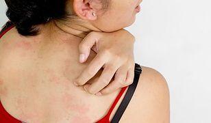 Choroby skóry – co zamiast sterydów?