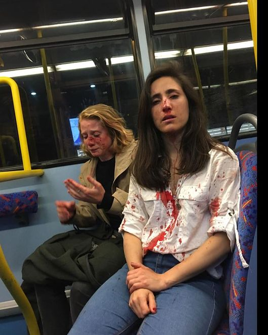 Londyn. Dwie napadnięte kobiety w autobusie
