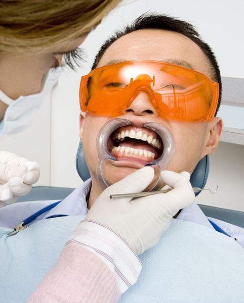Wybielanie zębów – tak czy nie?