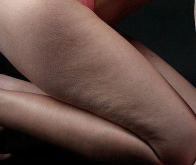 Cellulit to największa zmora kobiet. Na szczęście można się go pozbyć, dzięki zabiegom medycyny estetycznej