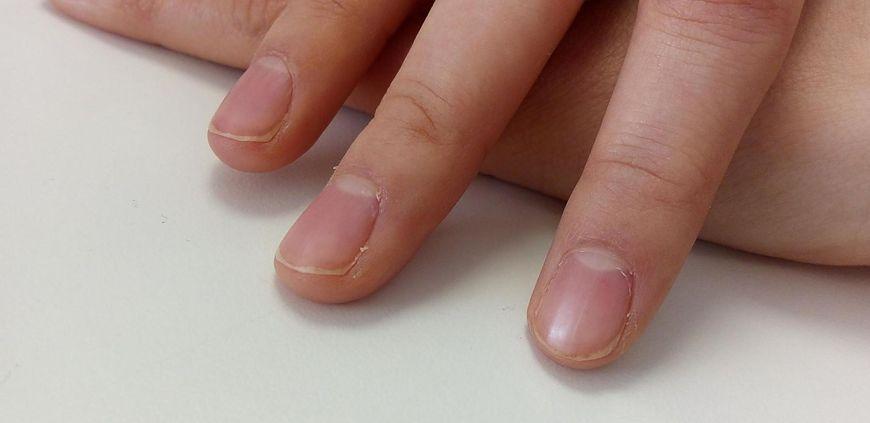 Obłączek to element budowy paznokcia