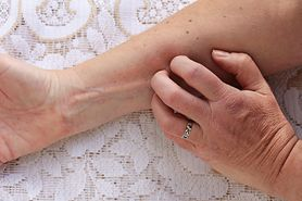 Objawy cukrzycy widoczne na skórze