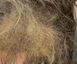 Włosy dziecka zawiązane w supeł. Ojciec rozplątywał je przez cztery dni