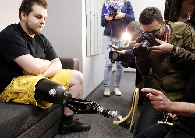 Proteza z kosmicznych materiałów testowana w Polsce
