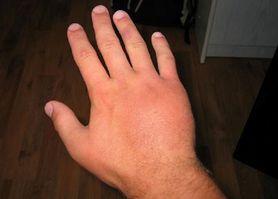 Spuchnięte dłonie – objawy, przyczyny i leczenie