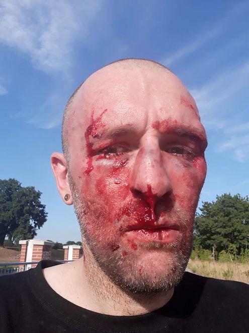 Wykładowca brutalnie pobity we Wrocławiu. Nowe fakty w sprawie