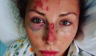 Polska olimpijka potrącona przez minibusa. Dramatyczny wypadek podczas treningu