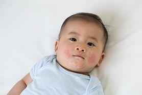 Rumień zakaźny u dzieci - przyczyny, objawy i diagnoza