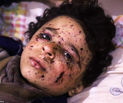 Omar stracił kilku członków rodziny podczas ataku samolotów na Wschodnią Ghoutę