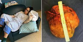Mąż myślał, że jest opętana. Miała zapalenie mózgu