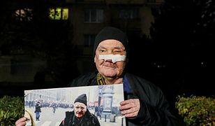 Marsz Niepodległości. Jest śledztwo w sprawie postrzelenia fotoreportera
