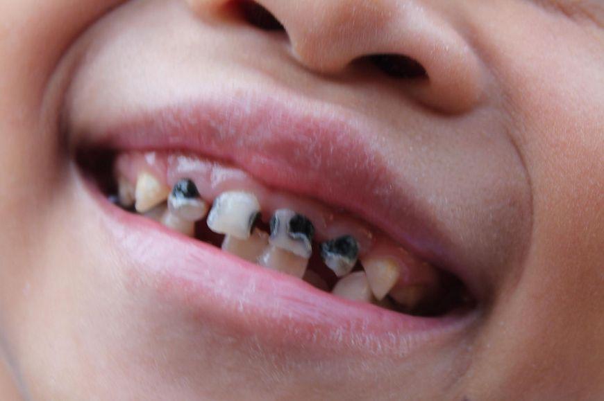 W trakcie rozkładu produkowane są kwasy, które atakują szkliwo zębów, a w efekcie prowadzą do próchnicy