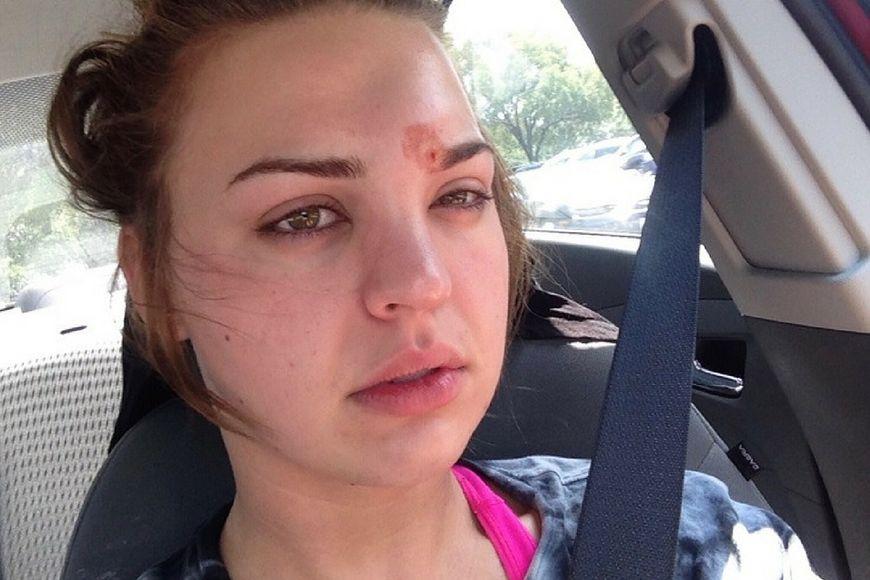 Katie myślała, że na jej twarzy pojawił się pryszcz. Był to cellulitis
