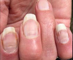"""""""Covidowe paznokcie"""" – tak poznasz, że przeszedłeś zakażenie bezobjawowo"""