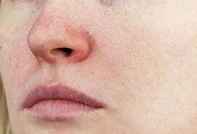 Fakty i mity o trądziku różowatym