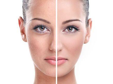 Jak skutecznie usunąć przebarwienia?