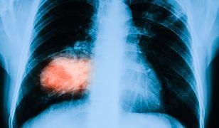 Pacjenci z nowotworem płuc nie skorzystają w nowoczesnego leczenia.