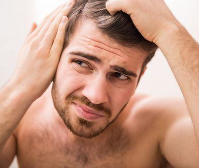 Łysienie u mężczyzn to coraz częstszy problem, dlatego warto poznać wszelkie dostępne metody jego zapobiegania.
