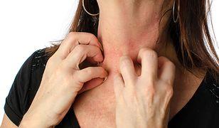 Alergia na kosmetyki może objawiać się swędzącą wysypką