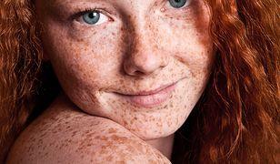 Piegi mogą być uznawane za ozdobę lub skazę twarzy
