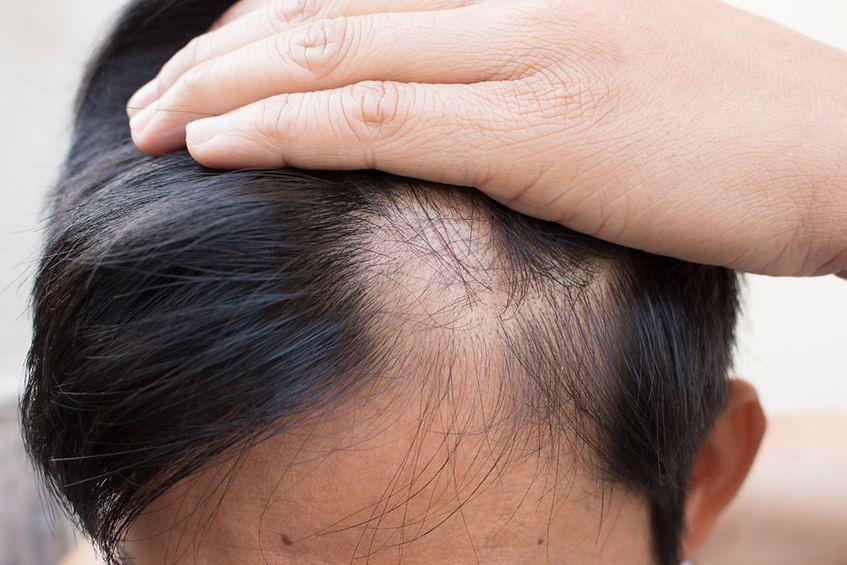 Łysienie u mężczyzn może być spowodowane problemami z hormonami