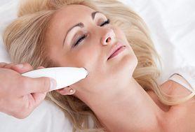 Laserowe usuwanie przebarwień po ciąży - na czym polega?
