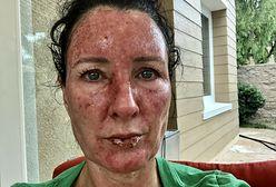 "Była syrenka Stephanie Huff ma raka skóry. ""Leżeliśmy na folii aluminiowej"""