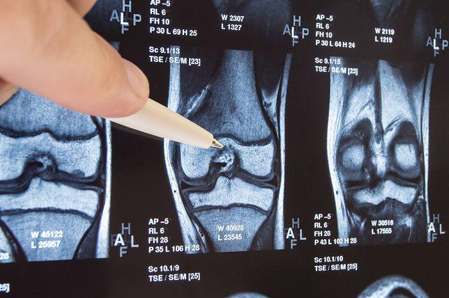 Na urazy rzepki w kolanie szczególnie narażeni się biegacze
